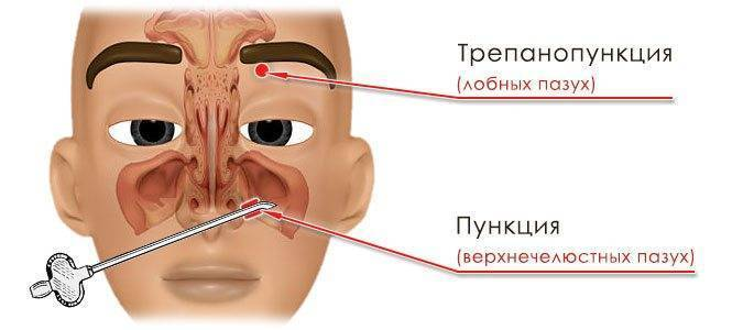 Пункция и трепанопункция лобной пазухи – описание и последствия