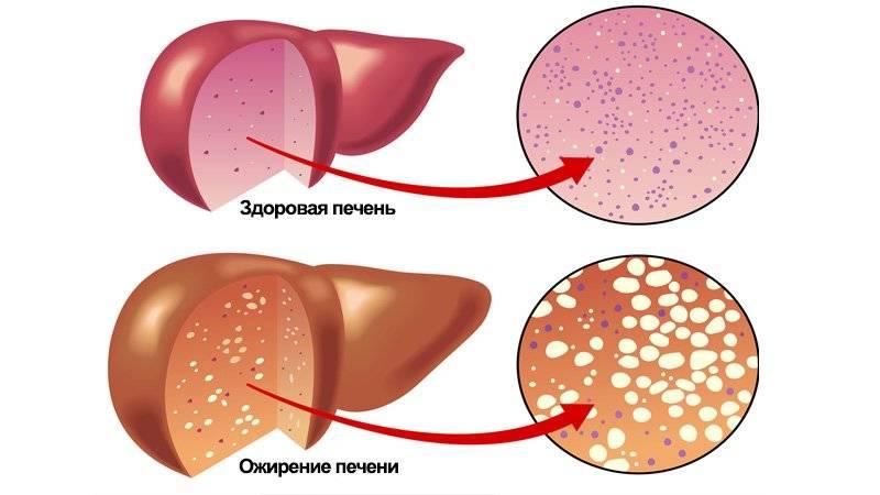 Гепатоз. лечение и симптомы гепатоза печени.