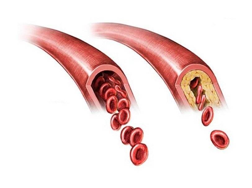 Генерализованный атеросклероз: причины, симптомы и лечение