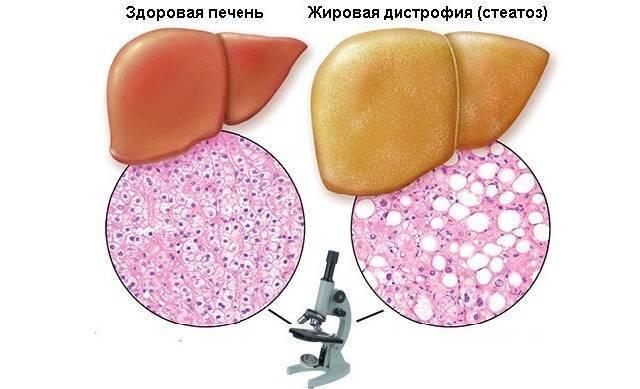 что такое стеатоз печени