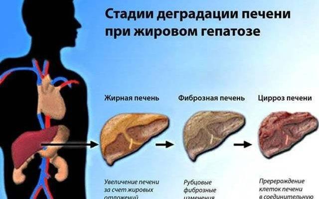 лекарство от гепатоза печени