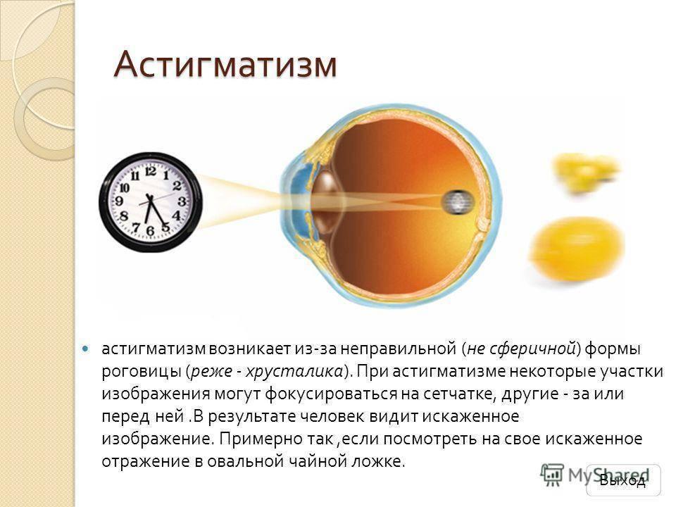 Определяем астигматизм самостоятельно с помощью онлайн теста