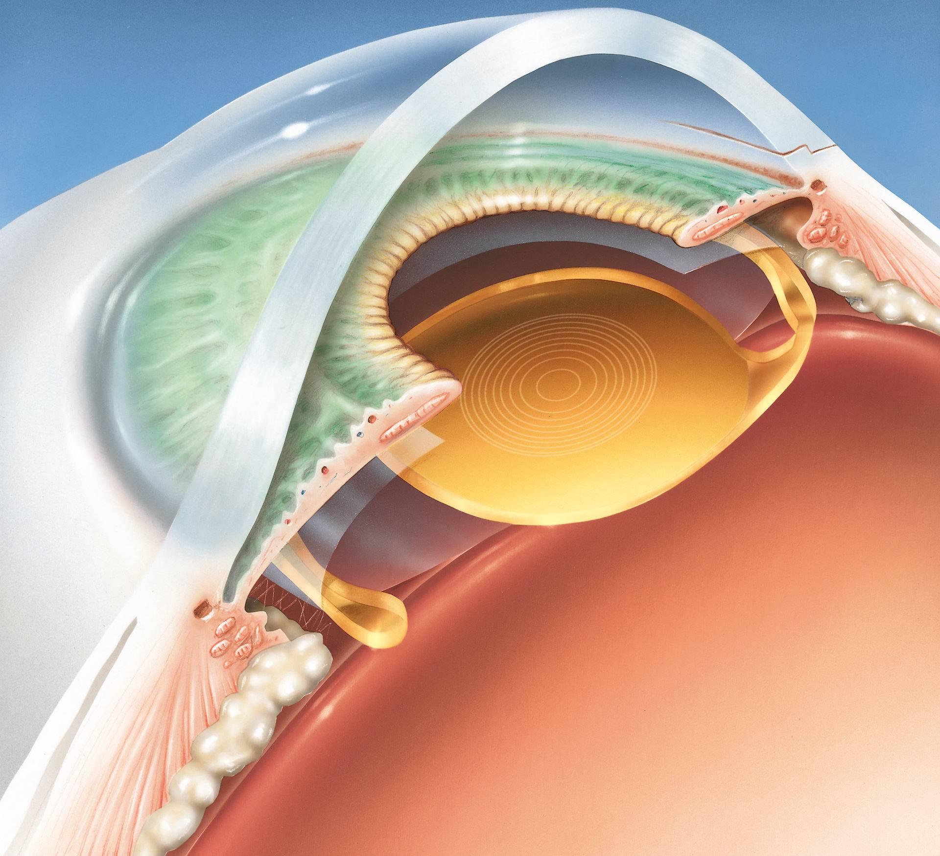 Какой хрусталик лучше выбрать при катаракте?