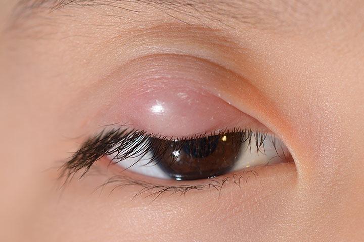 простуда на глазу у ребенка