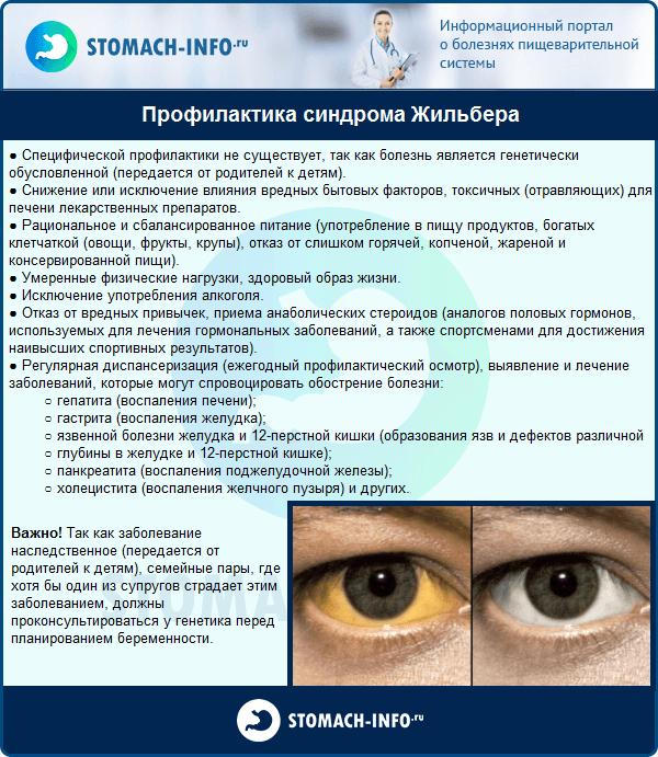 Синдром жильбера симптомы и лечение