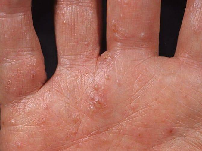 Дерматит кожи