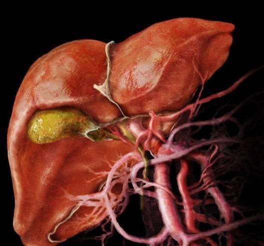 Онкология желчного пузыря: симптомы и признаки болезни