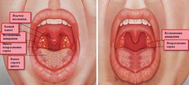 Фарингит: симптомы и лечение у взрослых, фото, как лечить фарингит