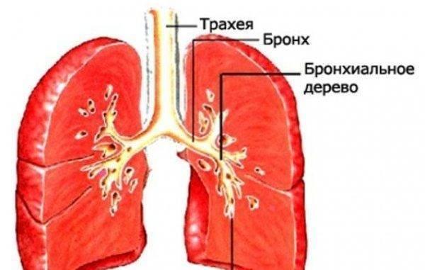 Проявления и лечение хронического трахеита