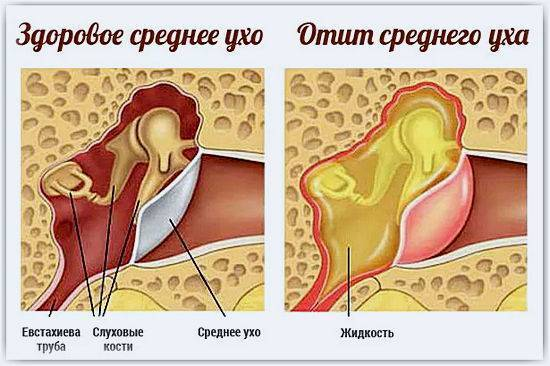 Заложило ухо при простуде: что делать, лечение в домашних условиях
