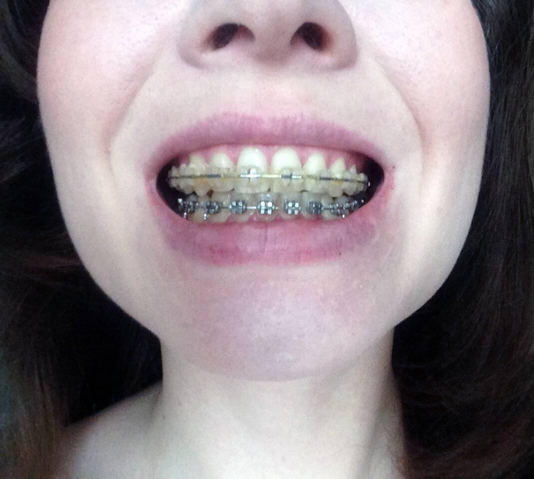 Керамические брекеты – цены на установку керамической брекет системы в москве | сеть стоматологических клиник «президент»
