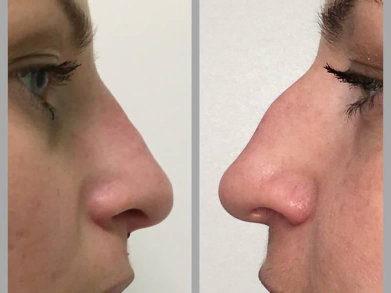 приподнять кончик носа без операции