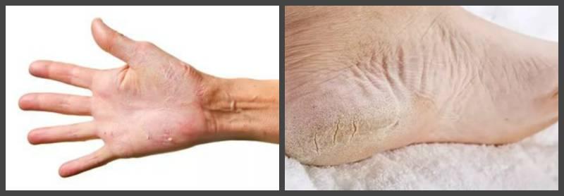 Особенности протекания и лечения пустулезного ладонно-подошвенного псориаза
