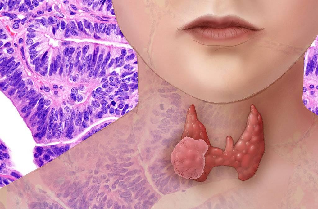 опухоль на щитовидной железе
