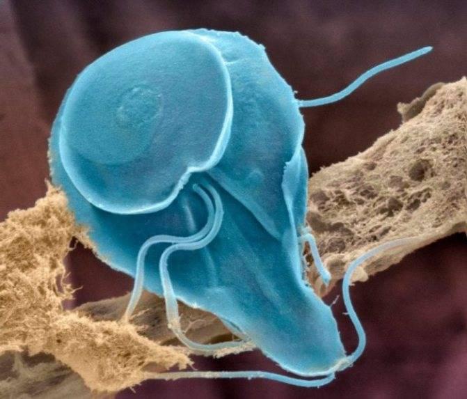 Беременность и лямблии: инфекционные и паразитарные болезни