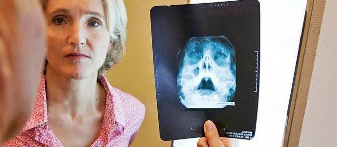 Рак верхнечелюстной (гайморовой) пазухи