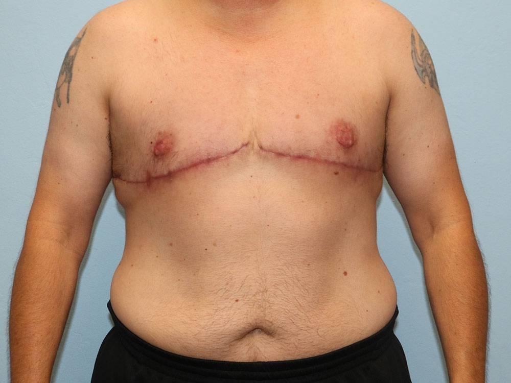 Резекция молочной железы: что это такое, послеоперационный период, отзывы