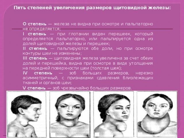 Как вылечить зоб второй степени: витамины, второй, вылечить, зоб, последствия, стадии, степени, у взрослых