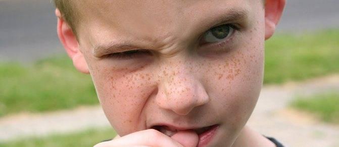 Нервный тик у ребенка: причины, лечение и симптомы