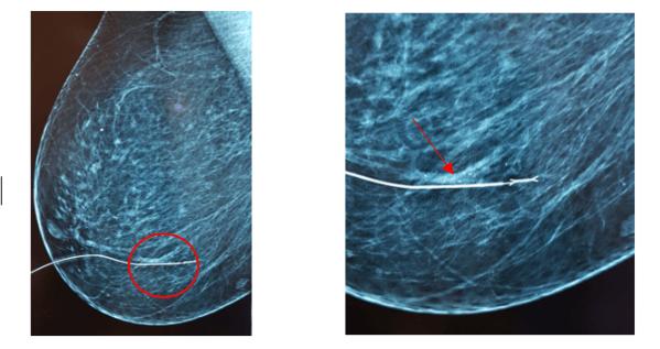 Лечение внутрипротоковой папилломы молочной железы. последствия удаления внутрипротоковой папилломы