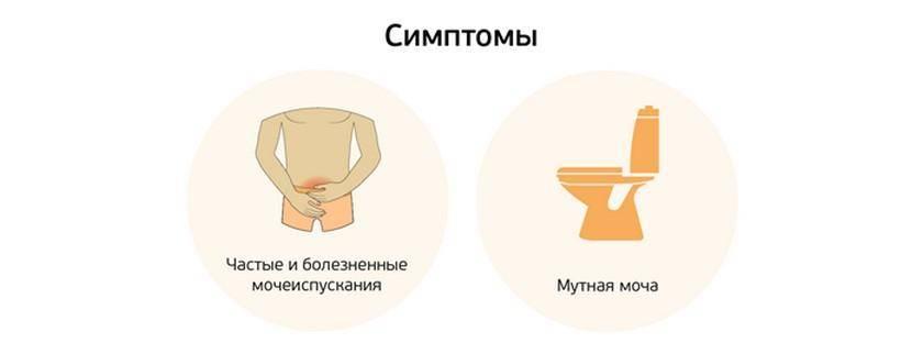 Какие симптомы цистита у мужчин, и как его лечить?
