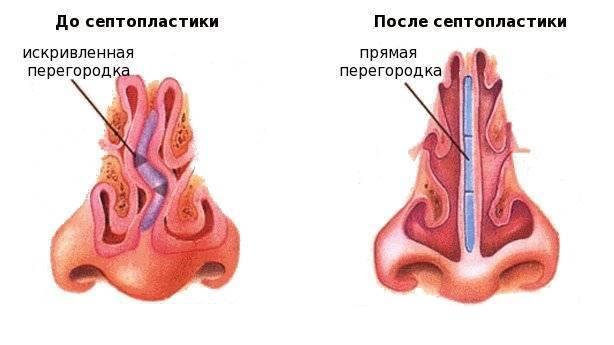 Все о выпрямлении носовой перегородки. операция, показания, цена
