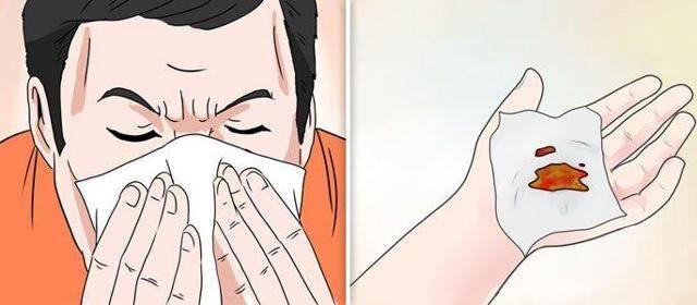 идет кровь из носа при сморкании