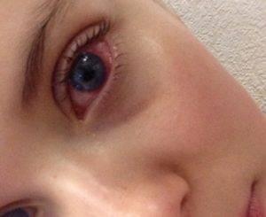 Красные глаза после сна – причины по утрам у взрослых и детей