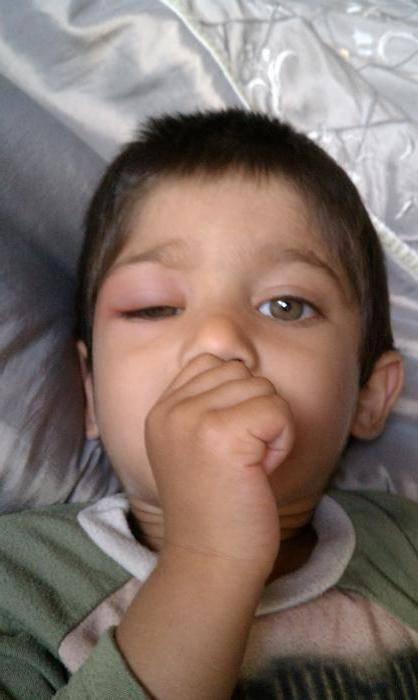 Самые частые причины отеков под глазами у ребенка и что с ними делать?