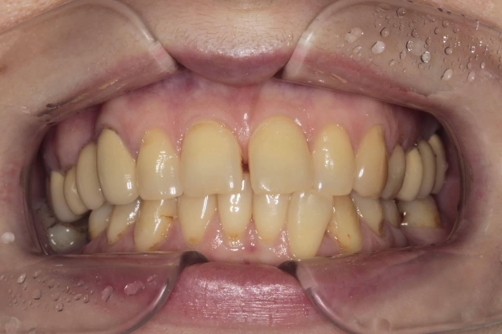 Лечение прикуса молочных зубов