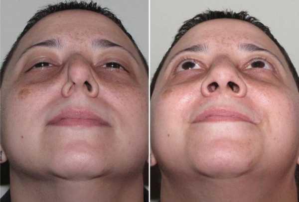 лечение искривления носовой перегородки без операции