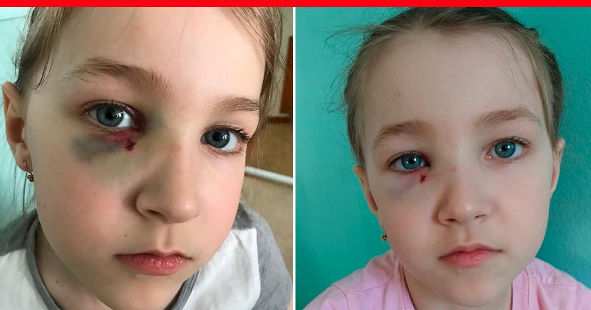 Симптомы, признаки и лечение перелома носа у ребенка
