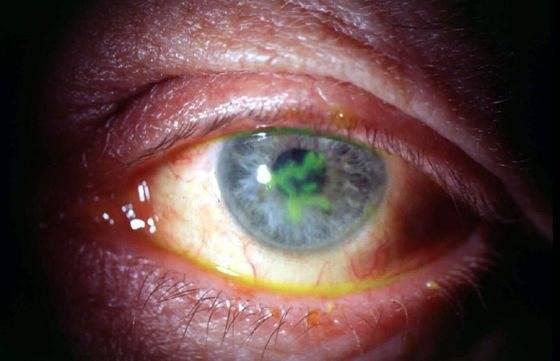 Герпетические поражения глаз (герпетический кератит)