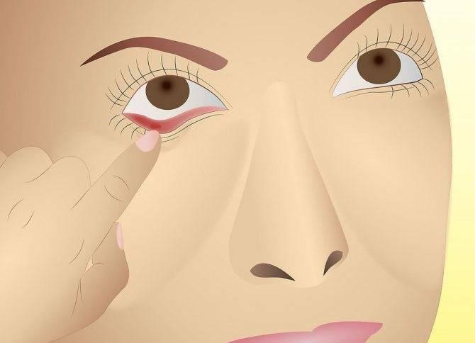 боль в углу глаза при моргании