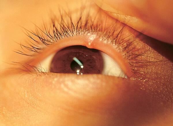 Действительно заразен ли ячмень на глазу, или это всё миф?