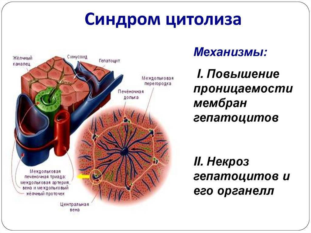 Синдром цитолиза: причины, признаки, диагноз, лечение, прогноз