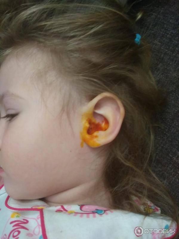 Желтые выделения из ушка - желтые выделения из уха у грудничка - запись пользователя happymum (happymum80) в сообществе здоровье новорожденных в категории отит - babyblog.ru