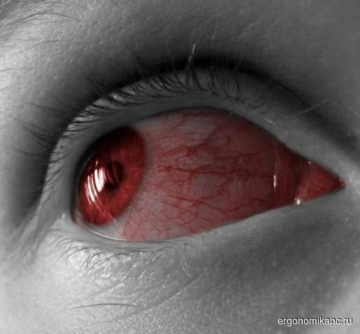 Почему стали красными глаза после бани, нормально ли это и что делать?