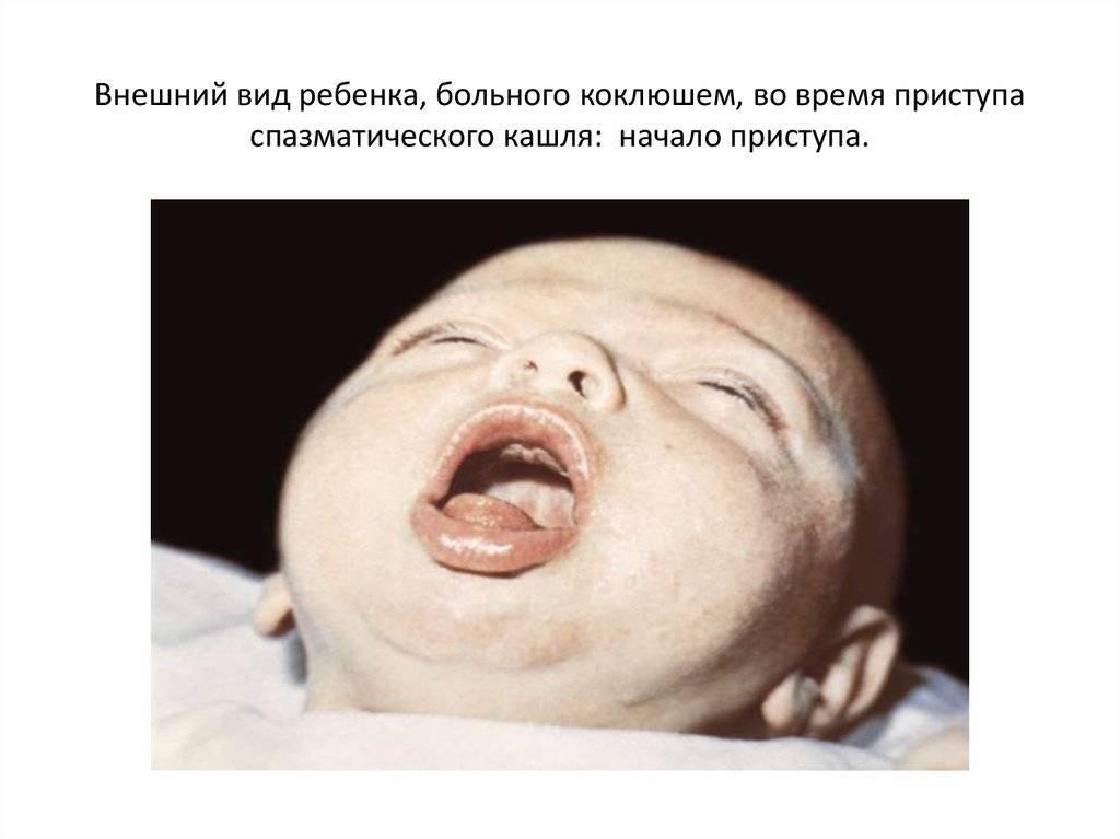 спазматический кашель у взрослого