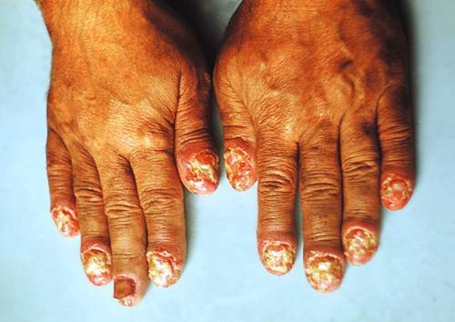 Что такое экссудативный псориаз, причины появления, особенности лечения и фото заболевания