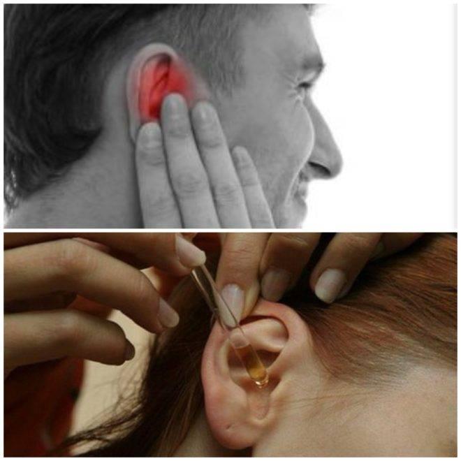 Инородное тело в ухе: симптомы, причины. что делать?