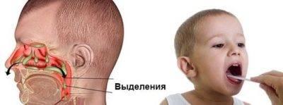 Хрипит,храпит,сопит...а носик чистый. что это? - ребенок сопит носом но соплей нет - запись пользователя наталья (myrr) в сообществе здоровье новорожденных в категории насморк и прочие заболевания носа - babyblog.ru