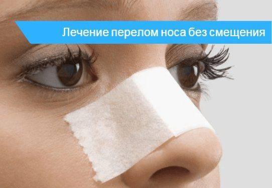 Перелом носа, что делать? как определить перелом носа