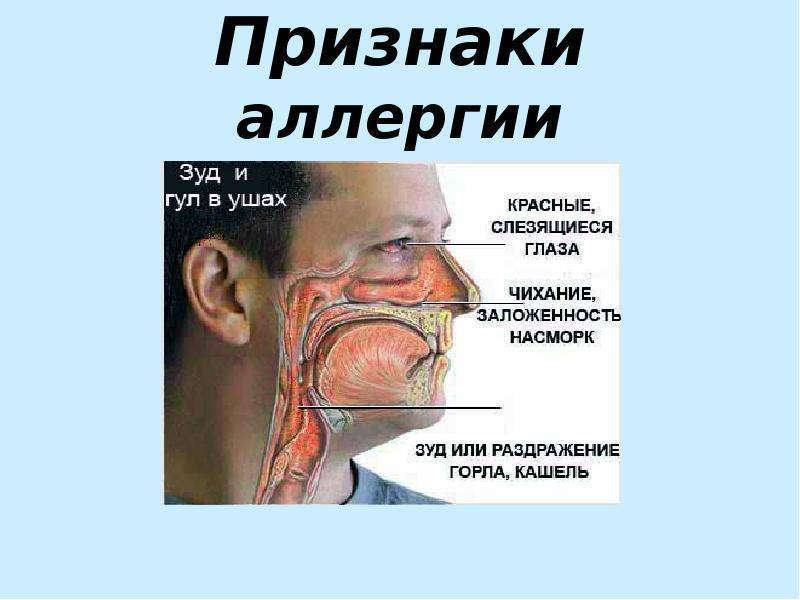 насморк слезятся глаза чихание лечение