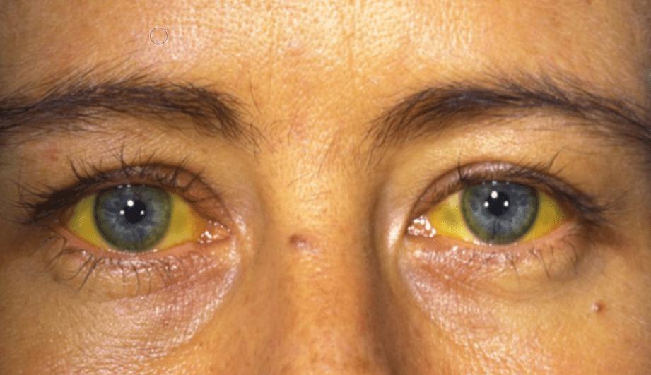 Что такое механическая желтуха: причины, симптомы, диагностика и лечение