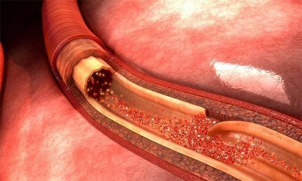 Генерализованный атеросклероз — что это такое, причины и лечение