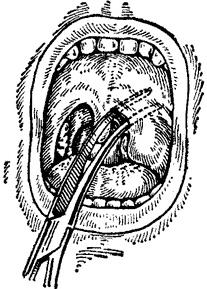 Причины и лечение абсцесса горла