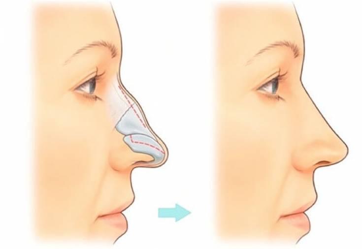 Как избавиться от сливы на носу. как быстро убрать синяк на лице в домашних условиях