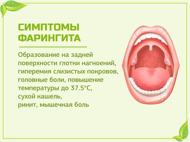 Самые эффективные рецепты для лечения фарингита народными средствами