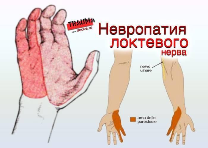Виды нейропатии локтевого нерва